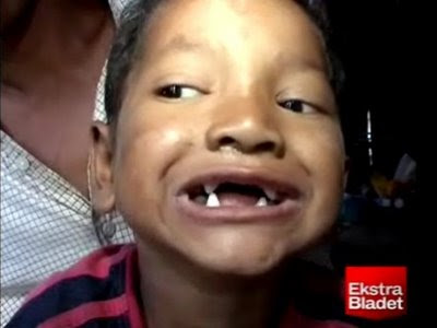 7 Year-Old With Vampire Teeth