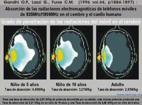 termografia del cerebro