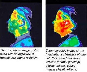 termografia paciente radiacion electromagnetica movil o telefono celular