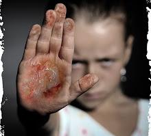 Contra la violencia infantil
