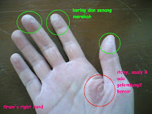 see result in your hand