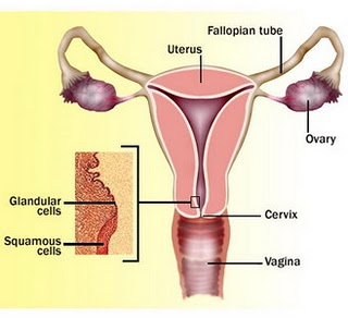 Cervical Cancer Cause of Death Number One in Indonesia