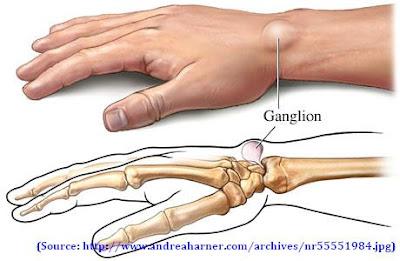 மணிக்கட்டில் கட்டி Ganglion+cyst
