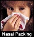 மூக்கால் இரத்தம் வடிதல் (Epistaxis) Nasal+packing+big