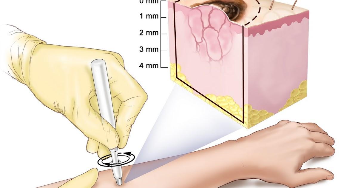 Biopsia de lesiones mamarias
