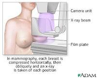 mammogram mammography
