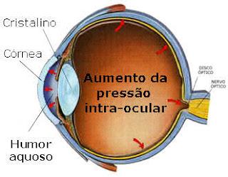 humor aquoso e glaucoma