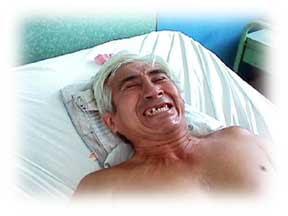 Sintomas do tétano - riso sardônico