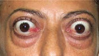 Sintomas da tireóide - Hipertireoidismo - proptose