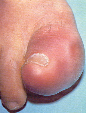 Podagra – gout of the big toe.