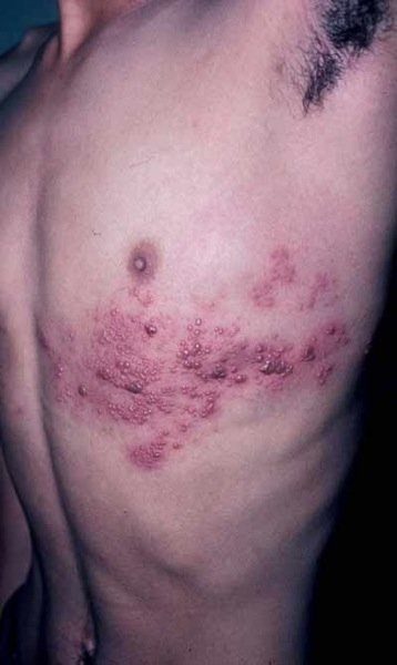 Oral Herpes (HSV-1) Pictures | STD Information