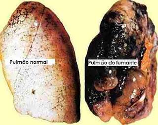 Pulmão cigarro