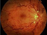 Fundo de olho - hipertensão arterial
