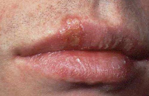 herpes blister på penis