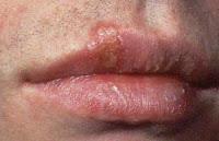 Photo of Herpes labialis