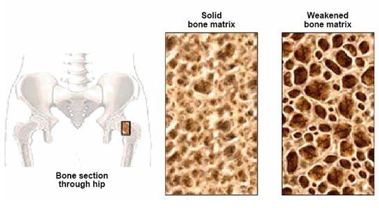 http://2.bp.blogspot.com/_pYzq4zxbFTY/TKacCkA_rNI/AAAAAAAAAmM/lsDjCABFOl0/s1600/Osteoporosis.jpg