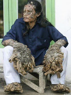 Dede: Tree Man Indonesia