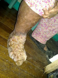 Madura foot. I get this more easily if I have leprosy