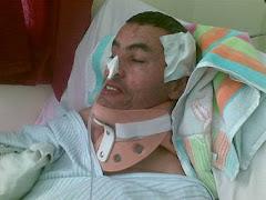 الي منظمات حقوق الانسان------ مصري يتم تحويله لمعاق حركيا تحركوا