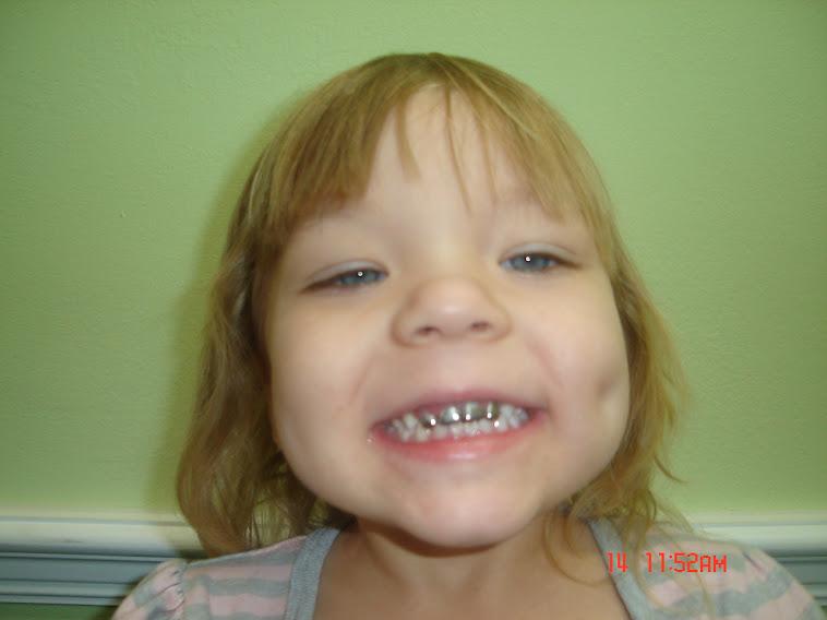 Jackie has new teeth;)
