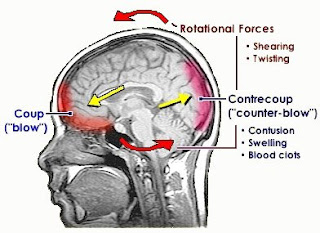 cause and effect of hiding concussions Frequently asked questions about cte what is cte this trauma includes both concussions that cause symptoms and subconcussive hits to the head that the cte center also has a brain bank that studies postmortem brain and spinal cord tissue to better understand the effects of repeated brain.