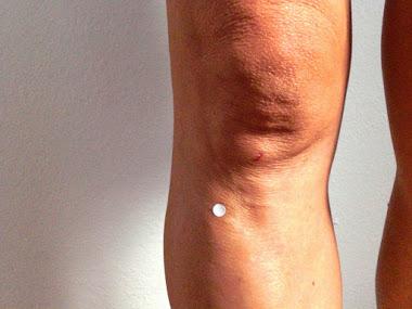 Cronoriflessologia e agopuntura