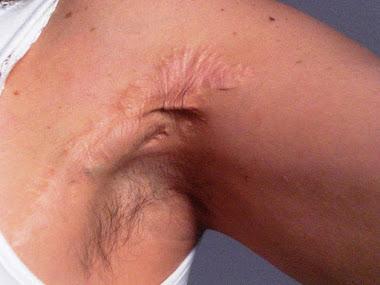 Focus cicatriziali