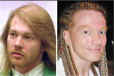 Axl Rose before and after pictures (image hosted by againsthegrainblog.com)