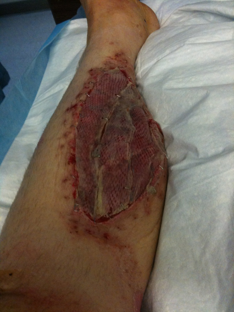 Skin Grafted to Fabric Skin Graft or Better Yet