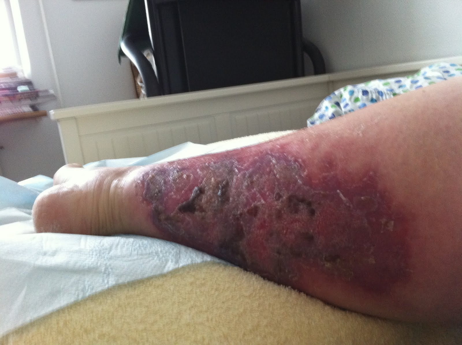 rosfeber i benet
