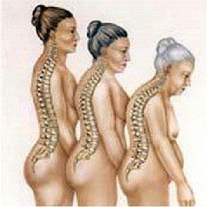 http://2.bp.blogspot.com/_qzozO6lSKWc/TAU4mmq0b7I/AAAAAAAAMUk/n4EC6vOKBKc/s320/osteoporose2.jpg
