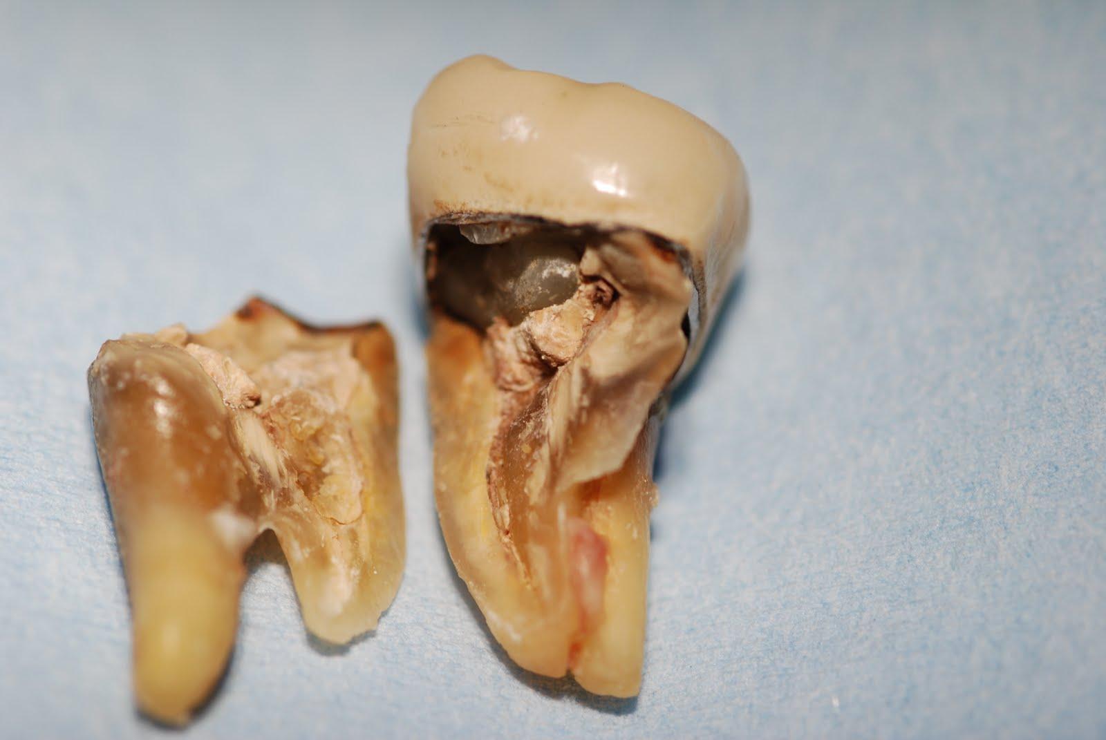 trekke en tann