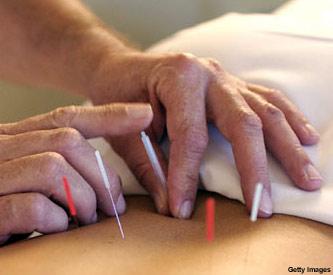 http://2.bp.blogspot.com/_rCz-t-2Mql0/TFfzertS26I/AAAAAAAAAlE/znYxw3-bBIQ/s1600/acupuntura_f3.jpg