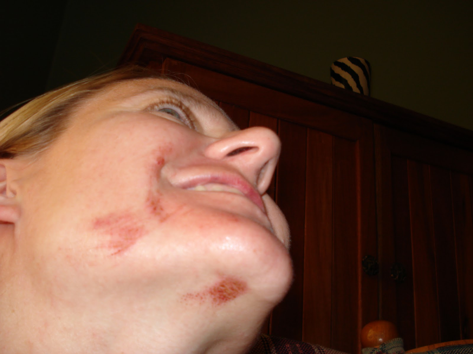 Wife facial burn pictures