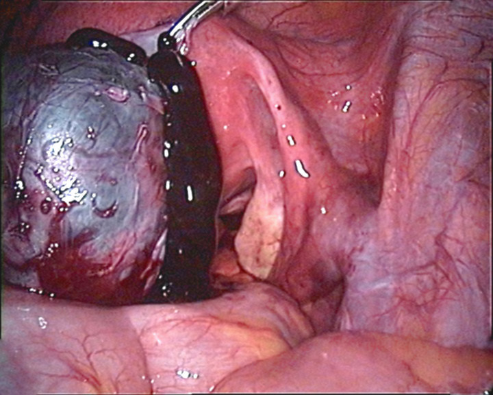 endometriosis - photo #11