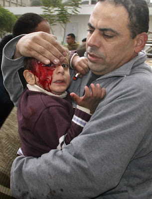 29 December 2008: A Palestinian man carries his wounded child to the treatment room of Kamal Adwan hospital following an Israeli missile strike in Beit Lahiya.