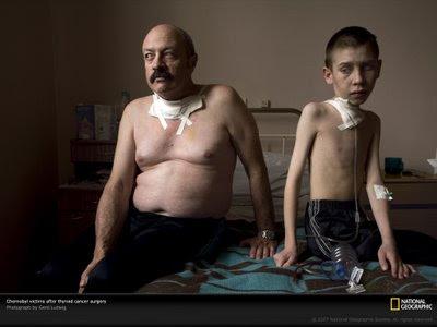 http://2.bp.blogspot.com/_ri_Q82HDXw0/TMbJxFGg2kI/AAAAAAAAAHU/nL50C2lTx4E/s1600/chernobyl-cancerous-999805-lw.jpg