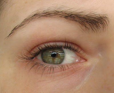 Here is a before picture of my eye, without makeup and digital retouching of