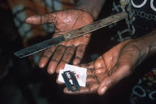 NO ALLE MUTILAZIONI GENITALI