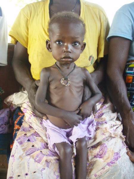 Child suffering from Marasmus