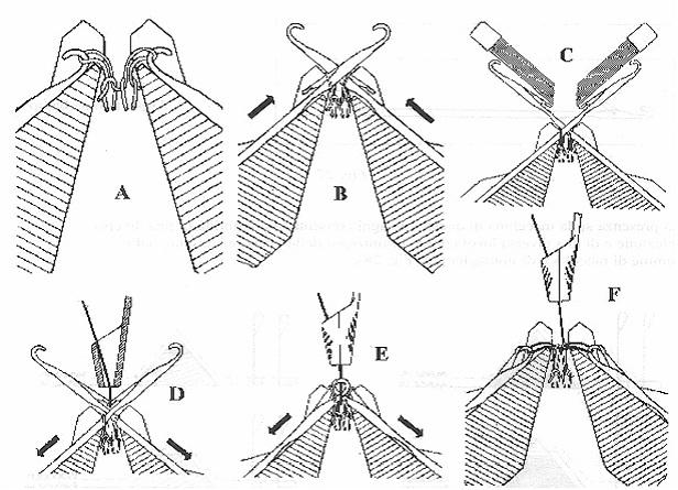 Knitting Loop Formation : Fabric club of bd types knitting loop