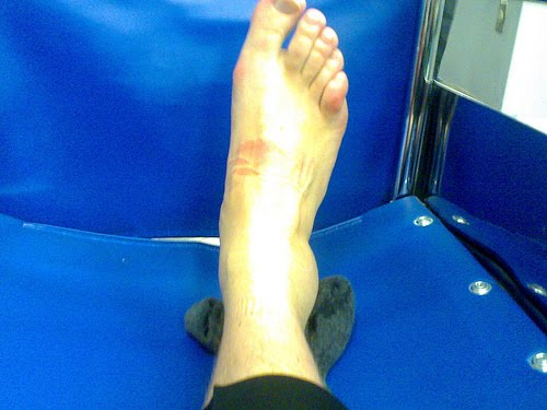[ankle]