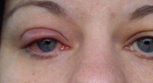 varför får man vagel i ögat