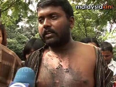 police brutality victim B Prabarkar