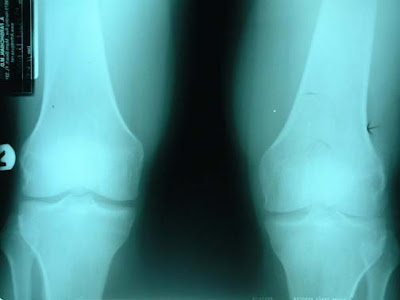 Do you know the symptoms of mild knee arthritis and how those symptoms translate to x-ray studies?