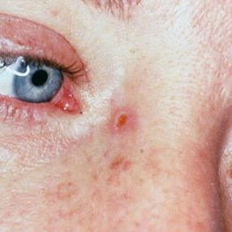 Skin Cancer Pictures