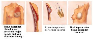 Plastic Surgery 101