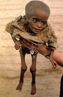 el hambre en el mundo !!! (africa)