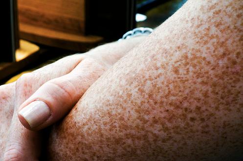 fregner på armene