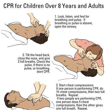essay on why cpr is important